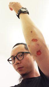 wound01
